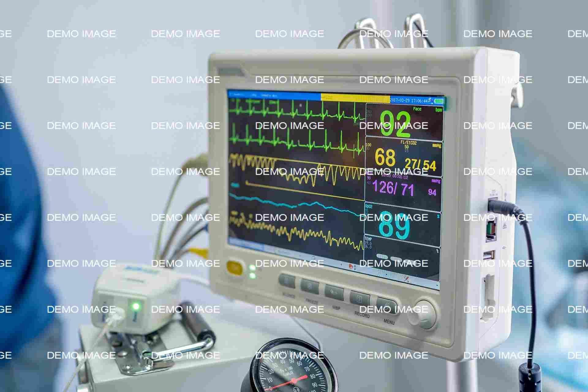 Anesthetic Monitoring